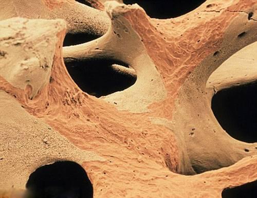 остеопороз правильное питание