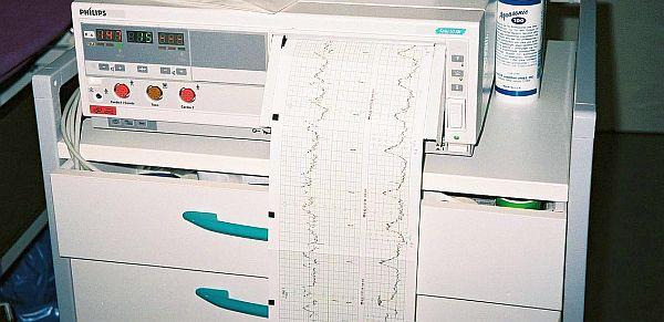 Применение кардиотокографов в гинекологических и акушерских отделениях